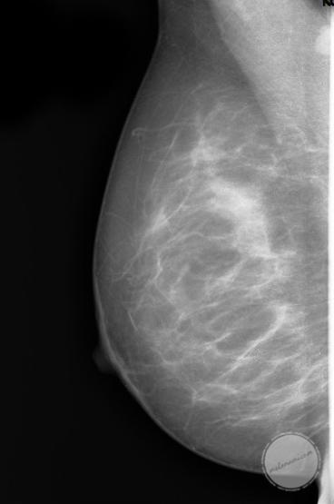 cysta i bröstet operation